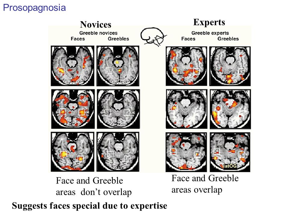 Prosopagnosia Experts. Novices. Face and Greeble areas overlap. Face and Greeble areas don't overlap.