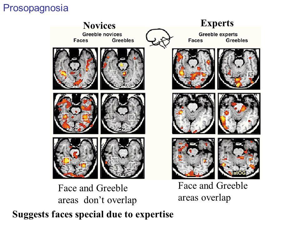 Prosopagnosia Experts. Novices. Face and Greeble areas overlap. Face and Greeble areas don't overlap.