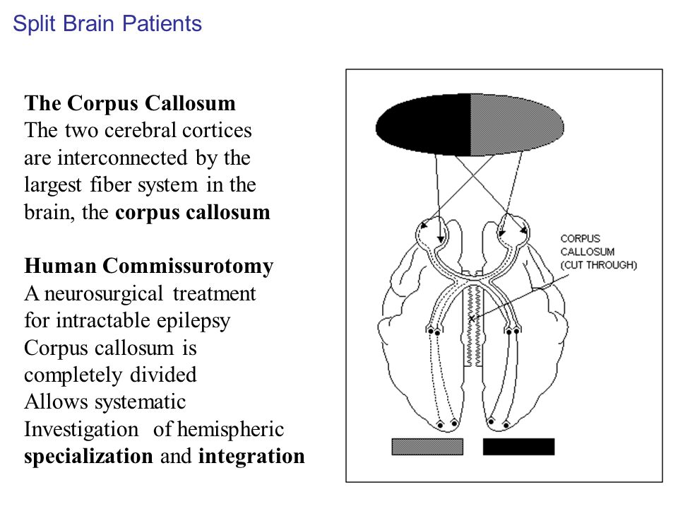 Split Brain Patients The Corpus Callosum. The two cerebral cortices. are interconnected by the. largest fiber system in the.