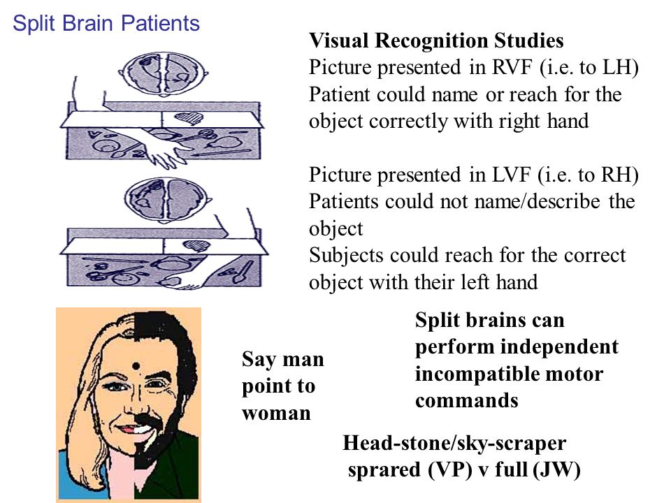 Split Brain Patients Visual Recognition Studies. Picture presented in RVF (i.e. to LH)