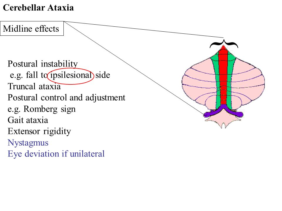 } Cerebellar Ataxia Midline effects Postural instability