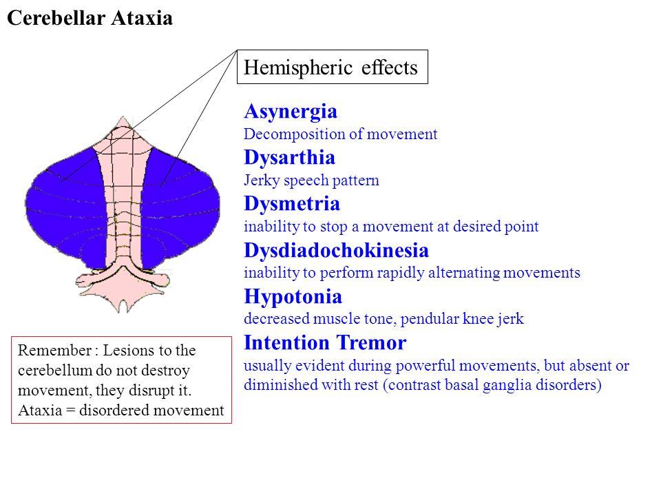 Cerebellar Ataxia Hemispheric effects Asynergia Dysarthia Dysmetria