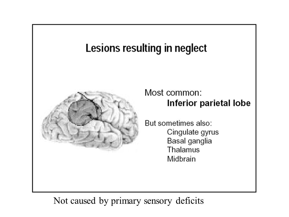 Not caused by primary sensory deficits