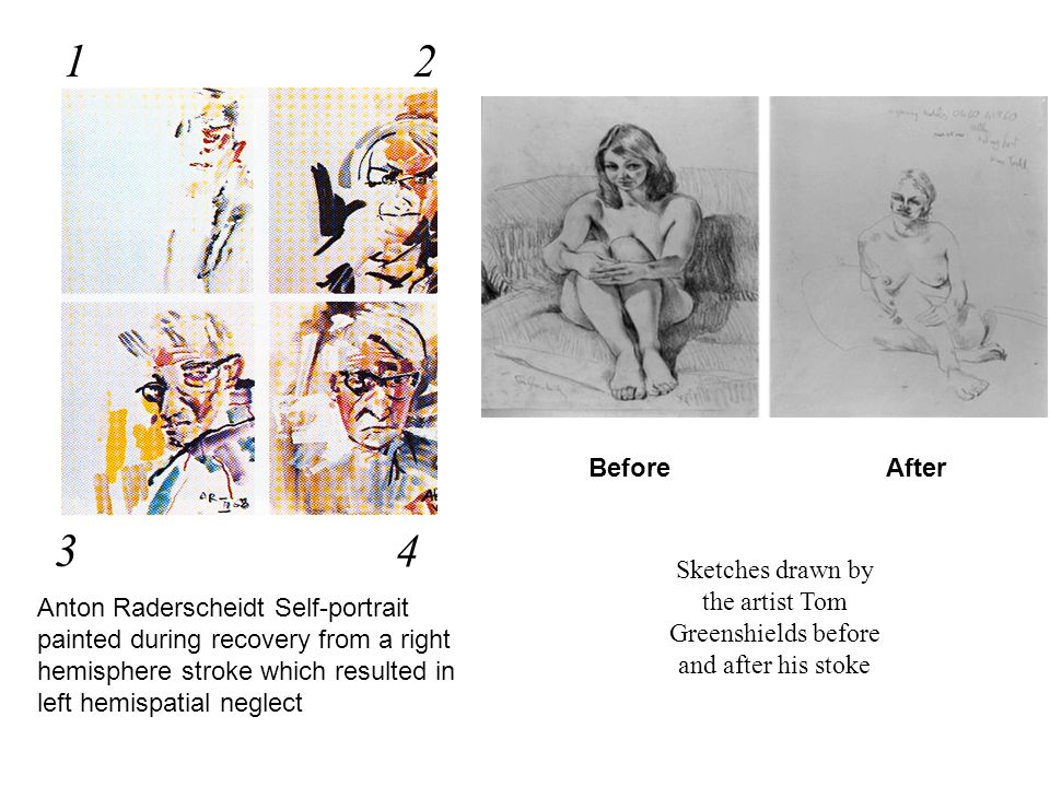 1 2. Before. After. 3. 4. Sketches drawn by the artist Tom Greenshields before and after his stoke.