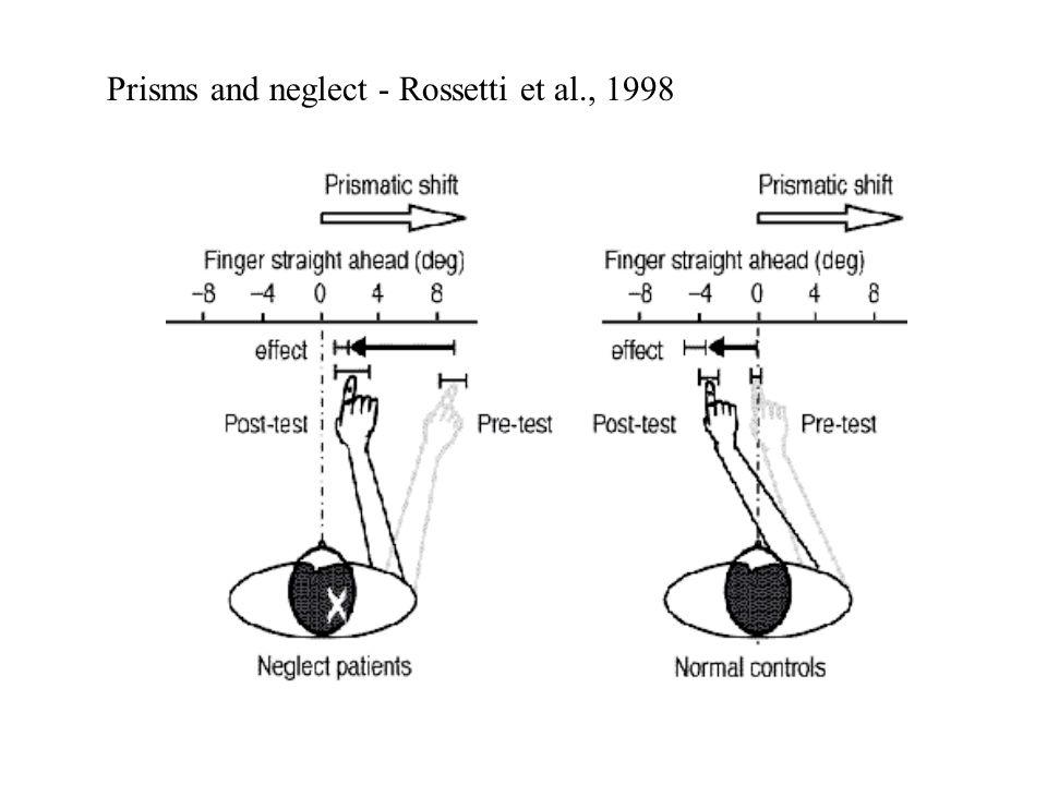 Prisms and neglect - Rossetti et al., 1998