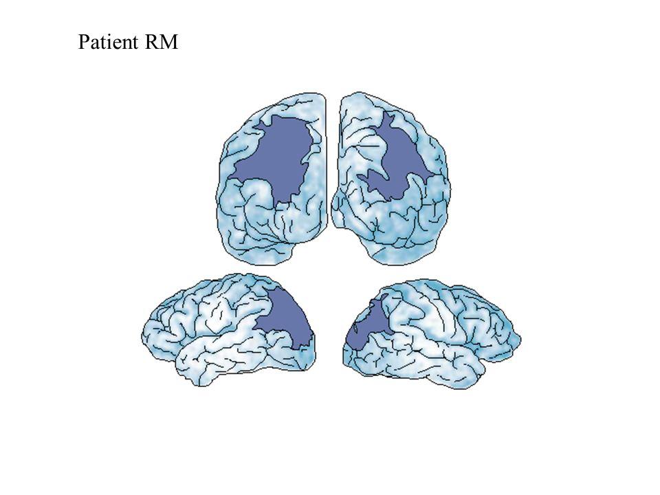 Patient RM