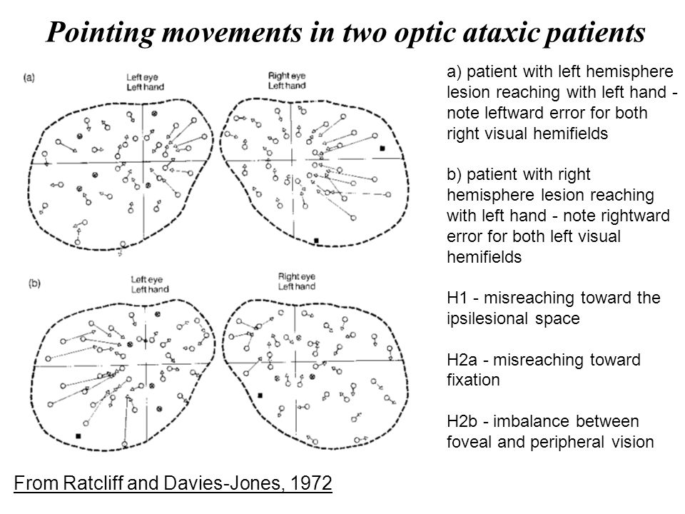Pointing movements in two optic ataxic patients