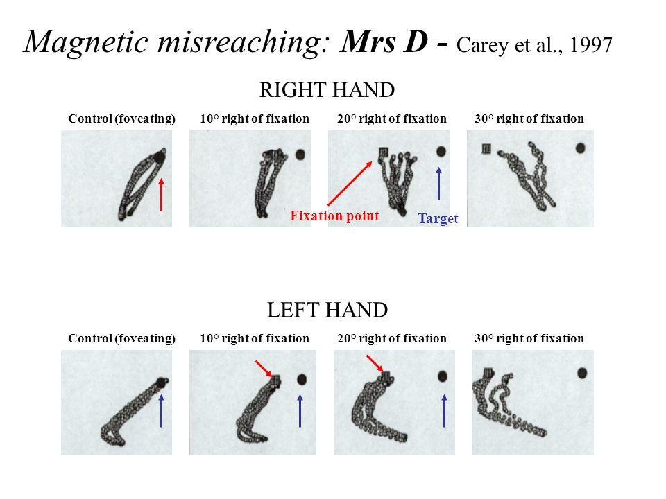 Magnetic misreaching: Mrs D - Carey et al., 1997