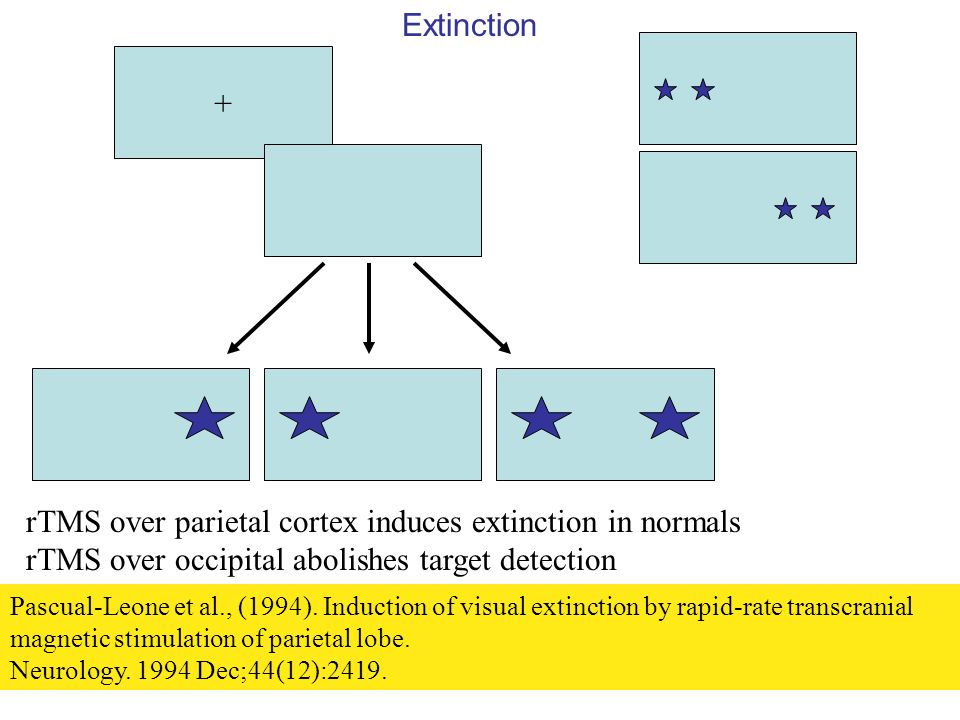 rTMS over parietal cortex induces extinction in normals