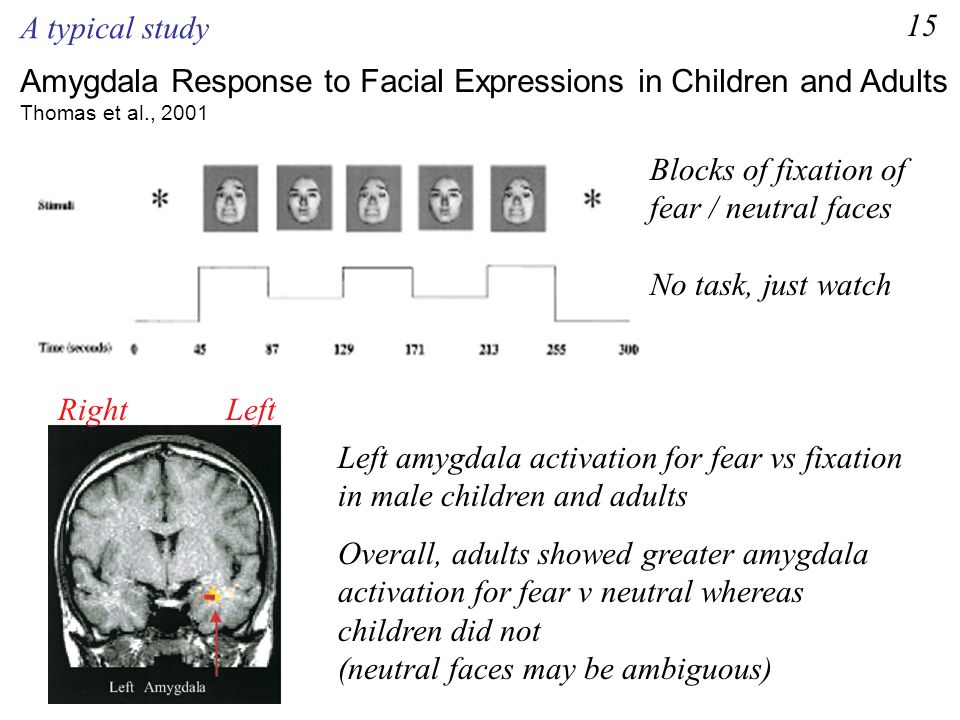 Amygdala Response to Facial Expressions in Children and Adults