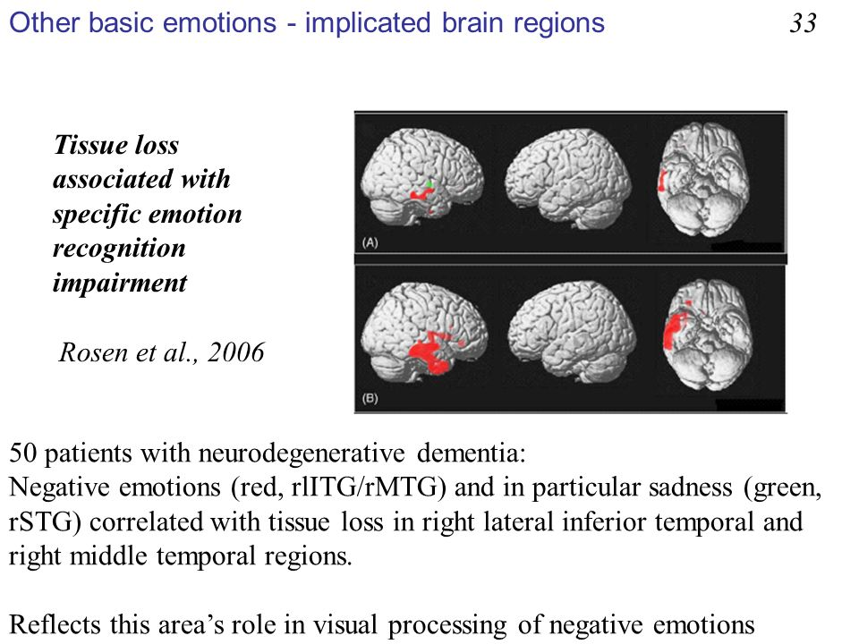 Other basic emotions - implicated brain regions 33