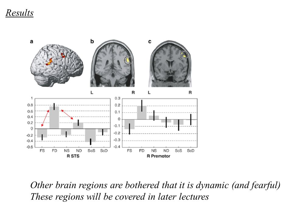 Results Other brain regions are bothered that it is dynamic (and fearful) These regions will be covered in later lectures.
