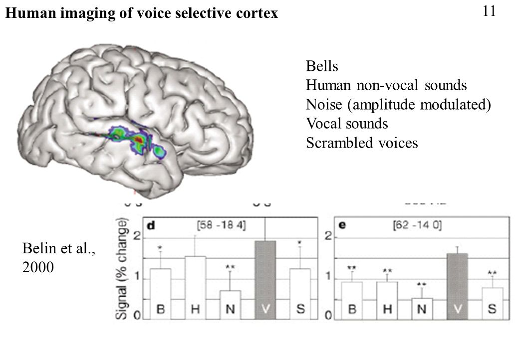 Human imaging of voice selective cortex