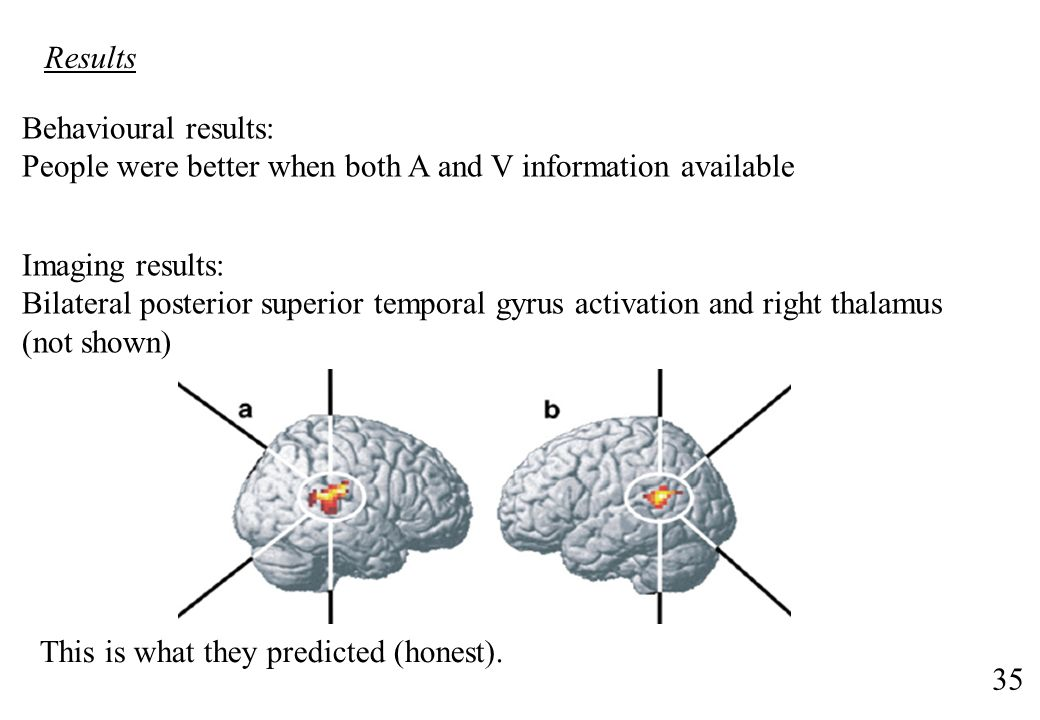 Results Behavioural results: People were better when both A and V information available. Imaging results: