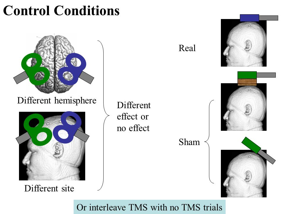 Control Conditions Real Different hemisphere