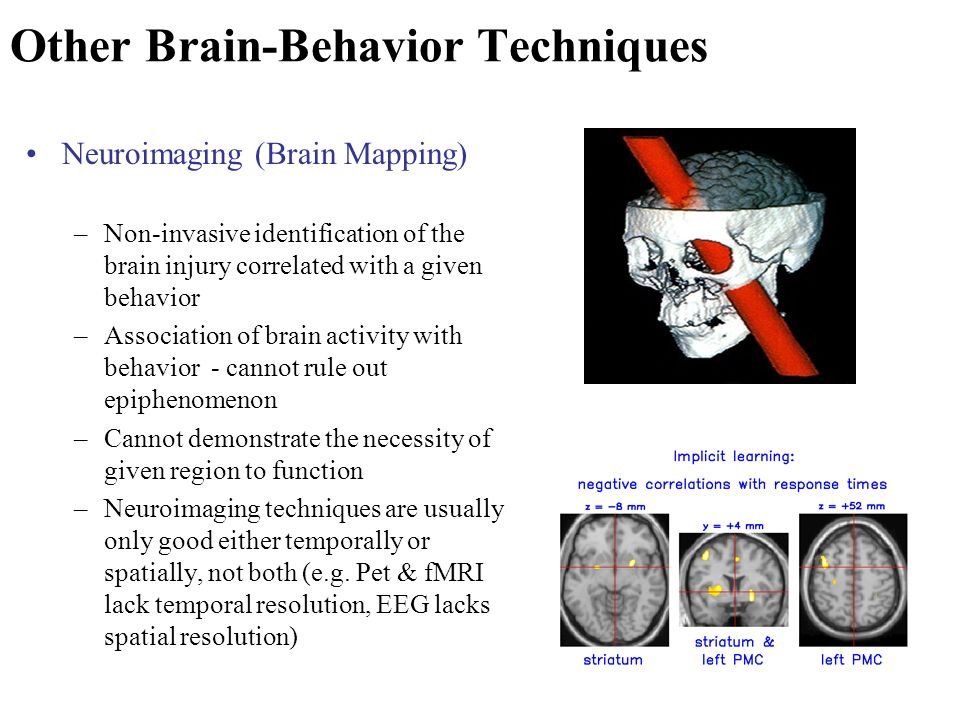 brain imaging techniques for cognitive functions analysis Neuroimaging or brain imaging is the use of various techniques to either directly or indirectly image the structure, function/pharmacology of the nervous systemit is a relatively new.