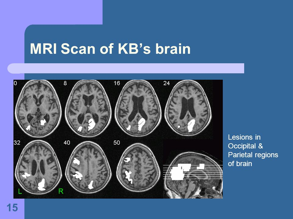 MRI Scan of KB's brain Lesions in Occipital & Parietal regions of brain.