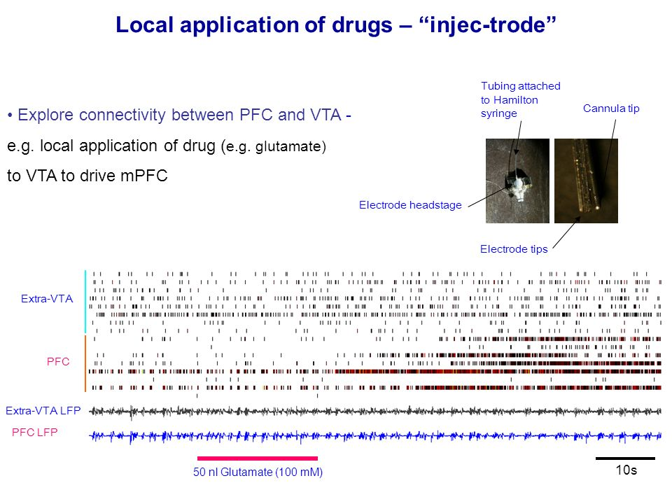 Local application of drugs – injec-trode