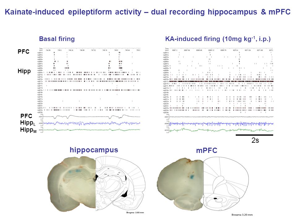 Kainate-induced epileptiform activity – dual recording hippocampus & mPFC
