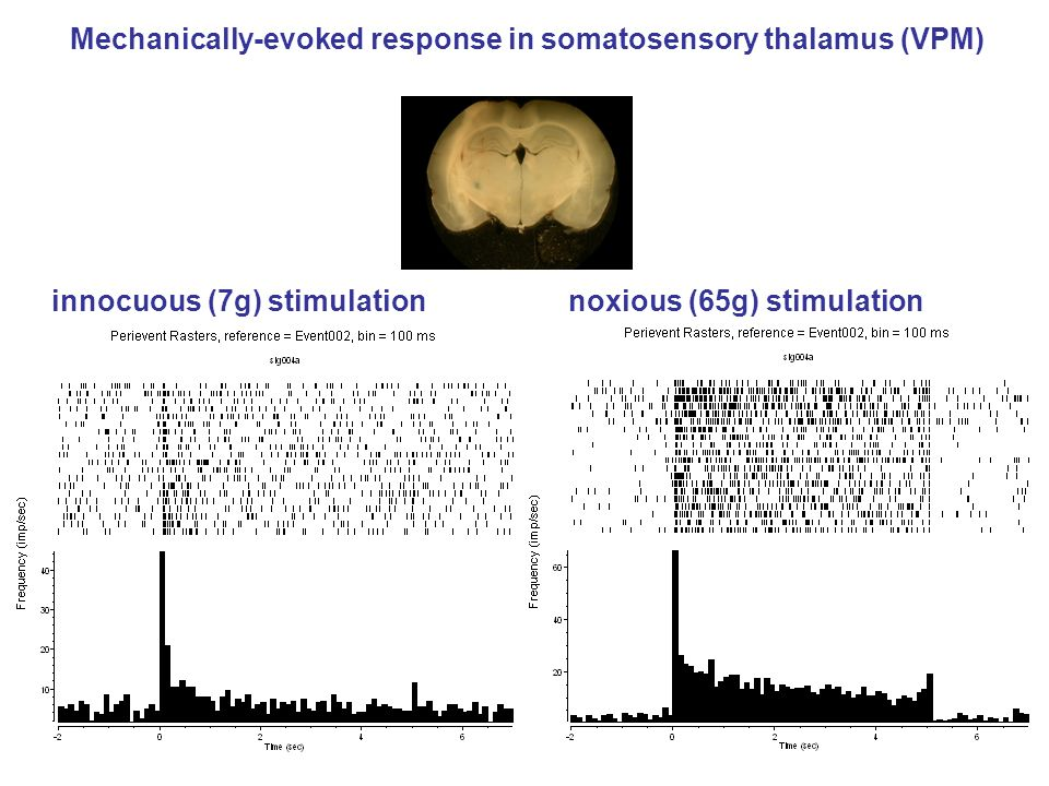 Mechanically-evoked response in somatosensory thalamus (VPM)