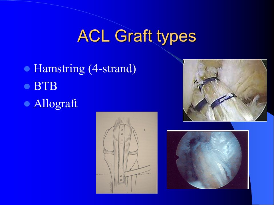 ACL Reconstruction Graft Choices