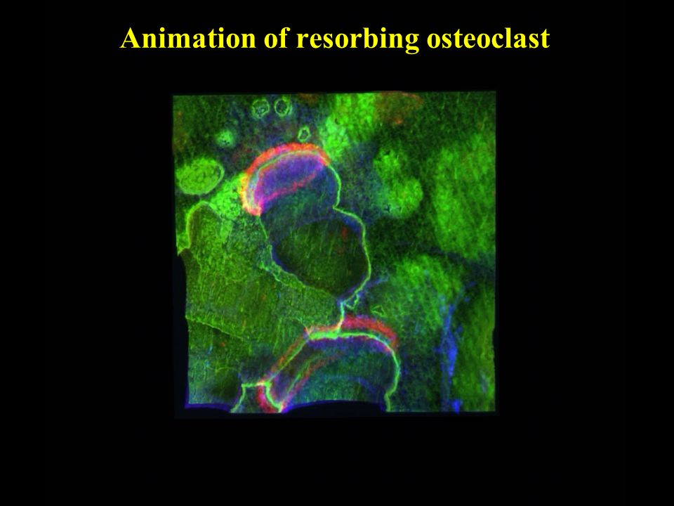 Animation of resorbing osteoclast