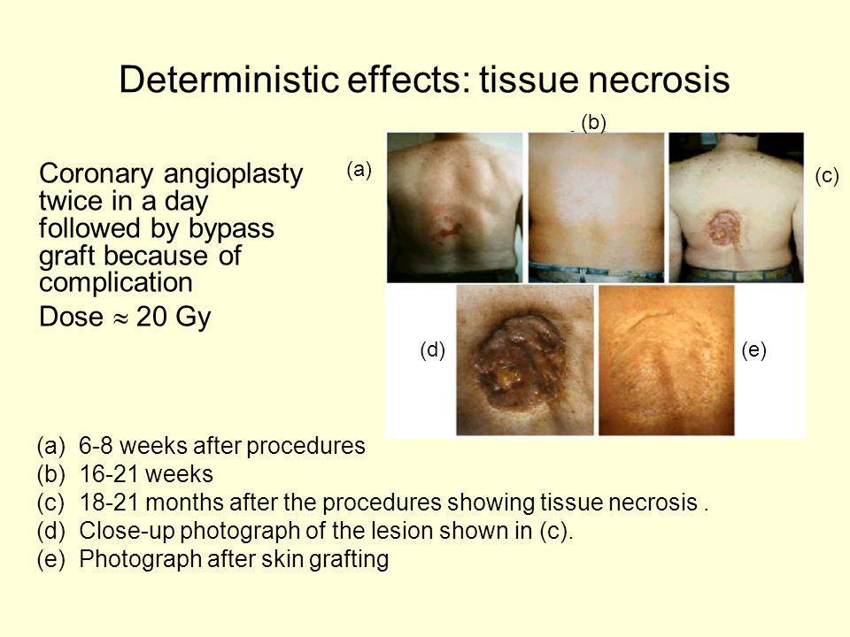 Deterministic effects: tissue necrosis