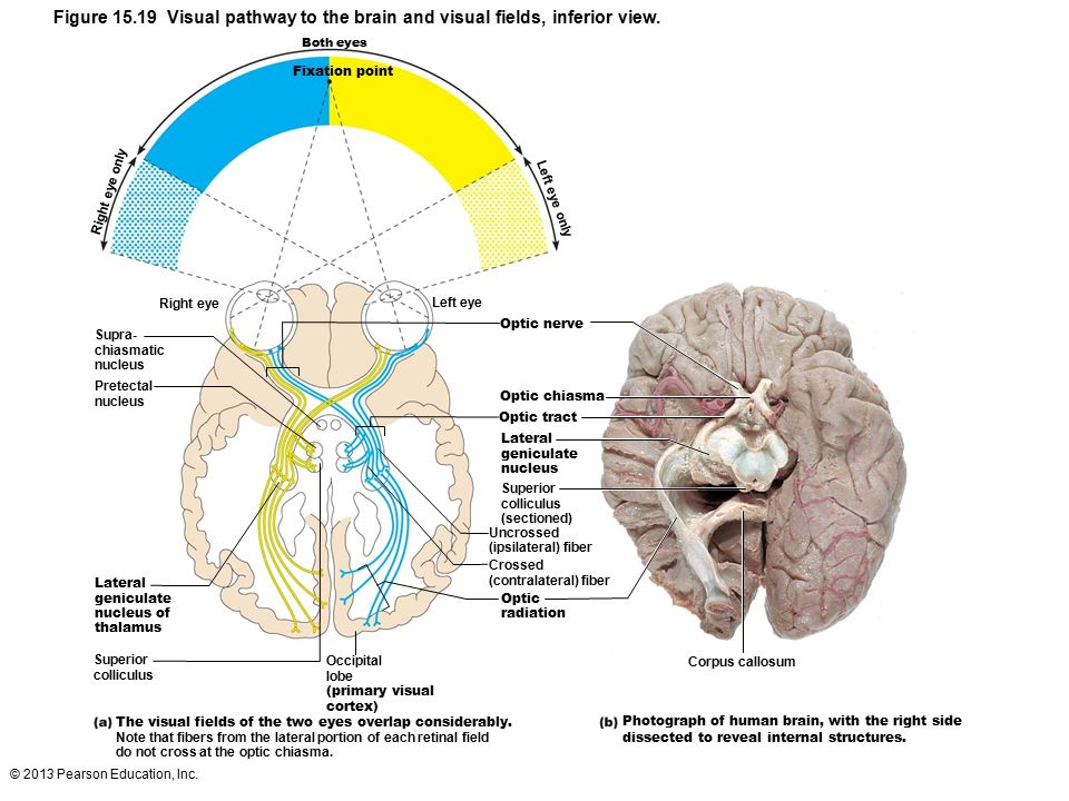 Visual pathways to the brain exercise 24 binge thinking figure 1519 visual pathway to the brain and visual fields inferior view ccuart Image collections