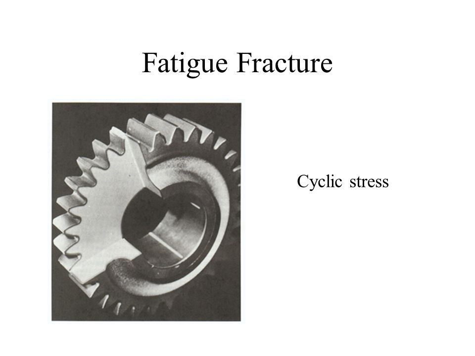 Fatigue Fracture Cyclic stress