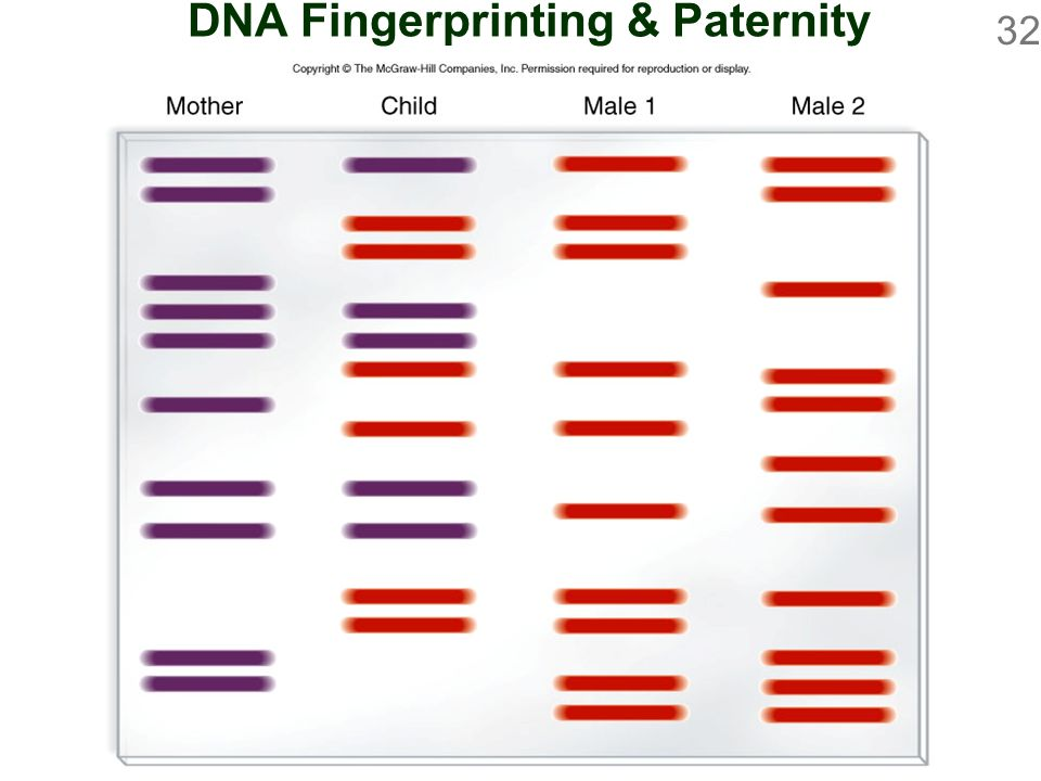how to read dna fingerprinting gel electrophoresis
