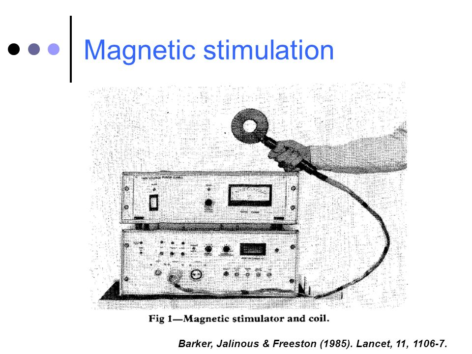 Magnetic stimulation 11;1(8437):1106-7 Barker, Jalinous & Freeston (1985). Lancet, 11, 1106-7. 6