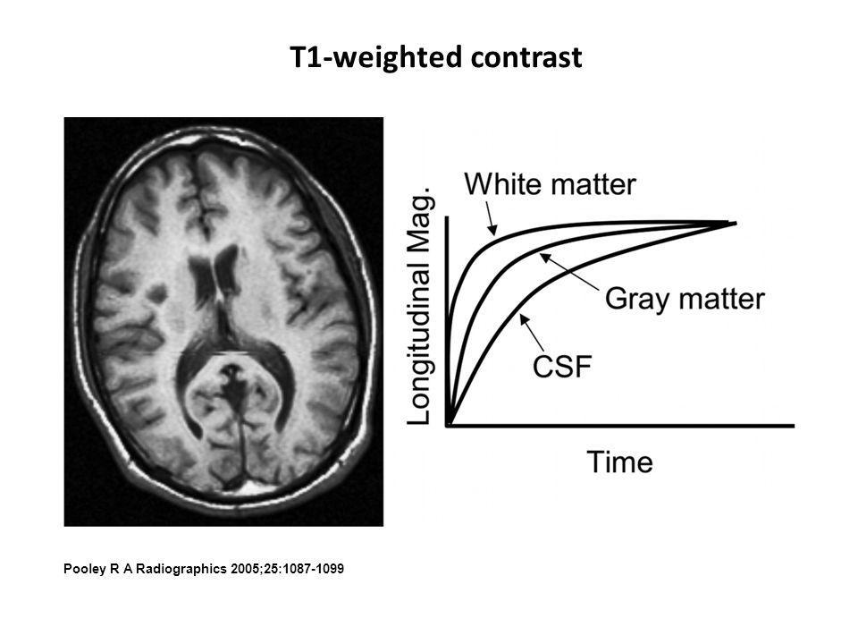 T1-weighted contrast