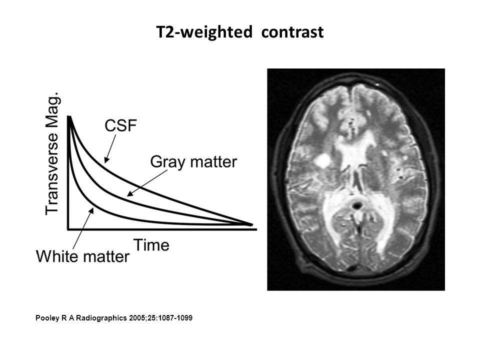 T2-weighted contrast