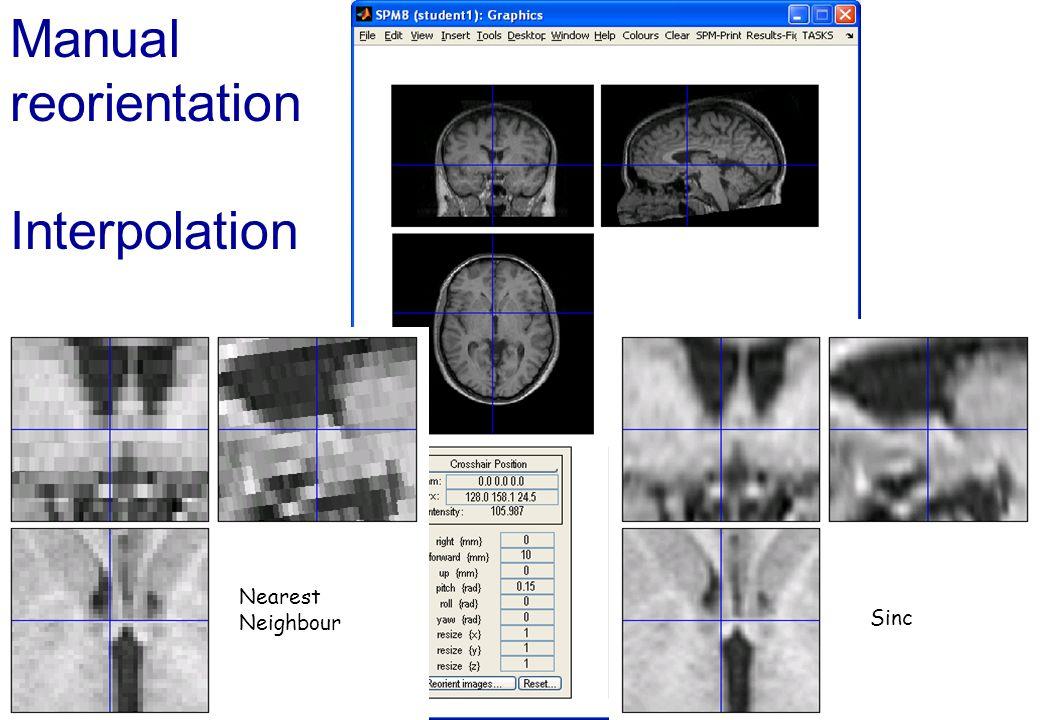 Manual reorientation Interpolation
