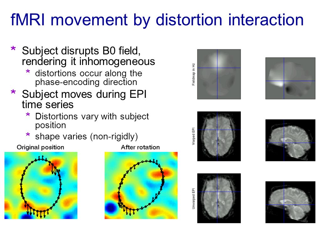 fMRI movement by distortion interaction