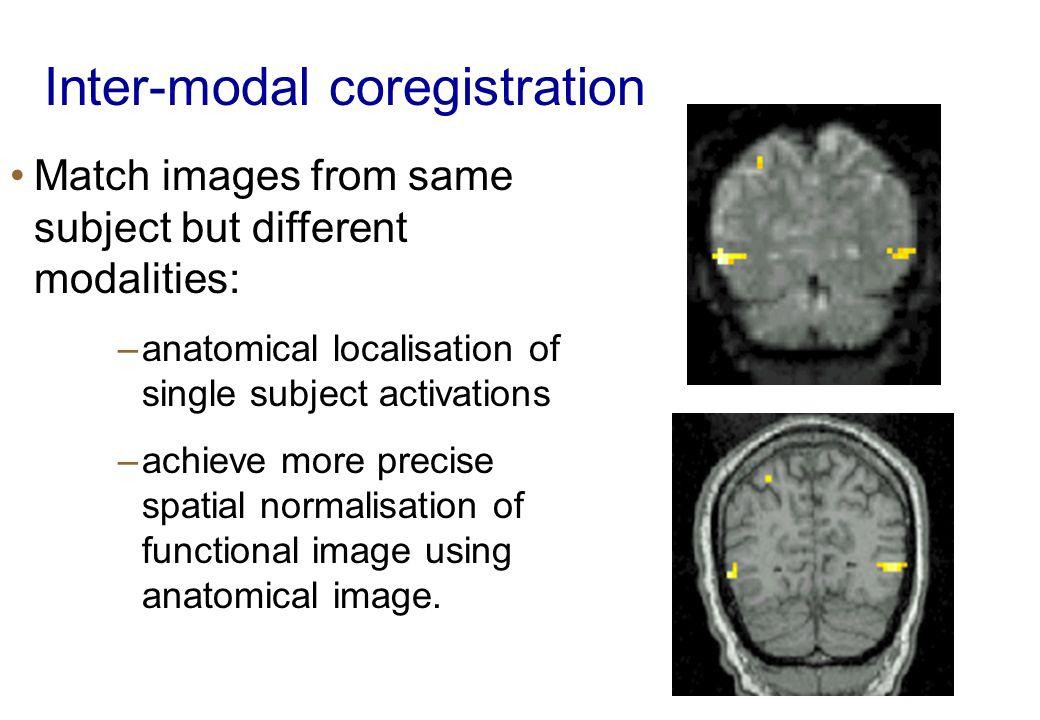 Inter-modal coregistration
