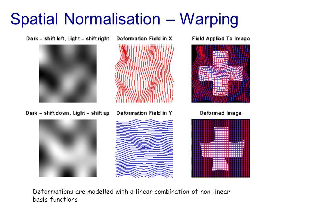 Spatial Normalisation – Warping