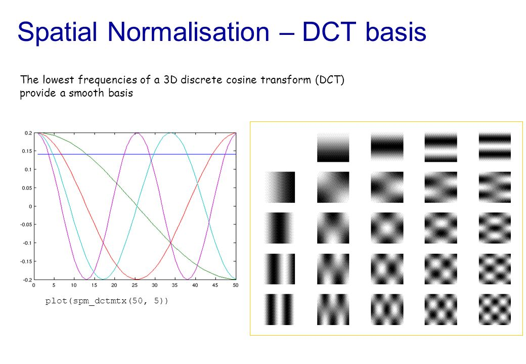 Spatial Normalisation – DCT basis