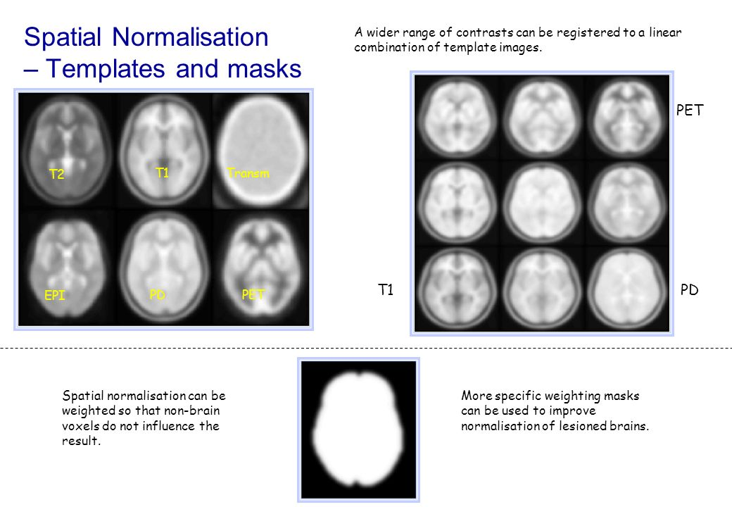 Spatial Normalisation – Templates and masks