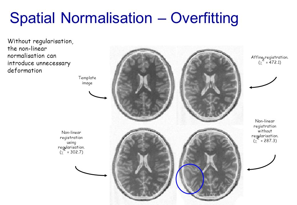 Spatial Normalisation – Overfitting