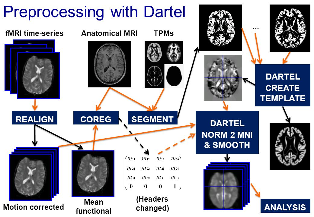 Preprocessing with Dartel