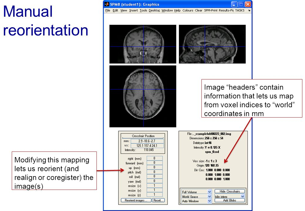 Manual reorientation Image headers contain information that lets us map from voxel indices to world coordinates in mm.
