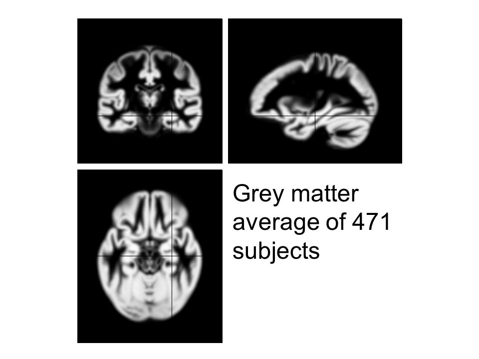 Grey matter average of 471 subjects