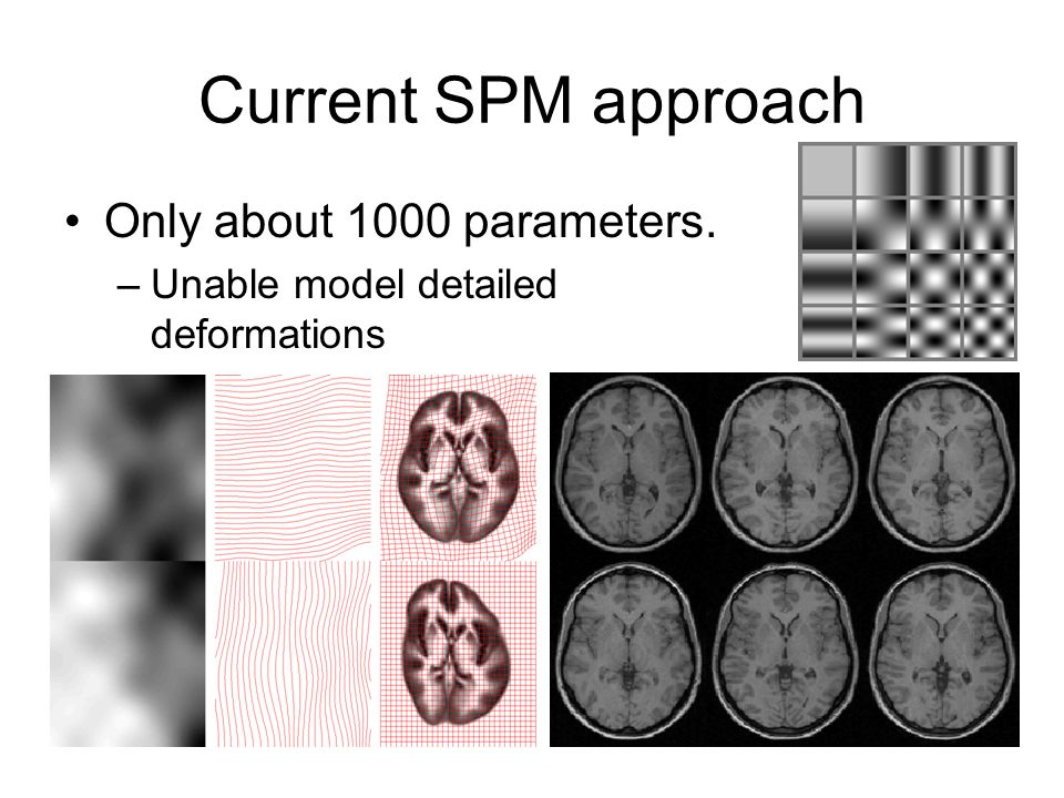 Current SPM approach Only about 1000 parameters.