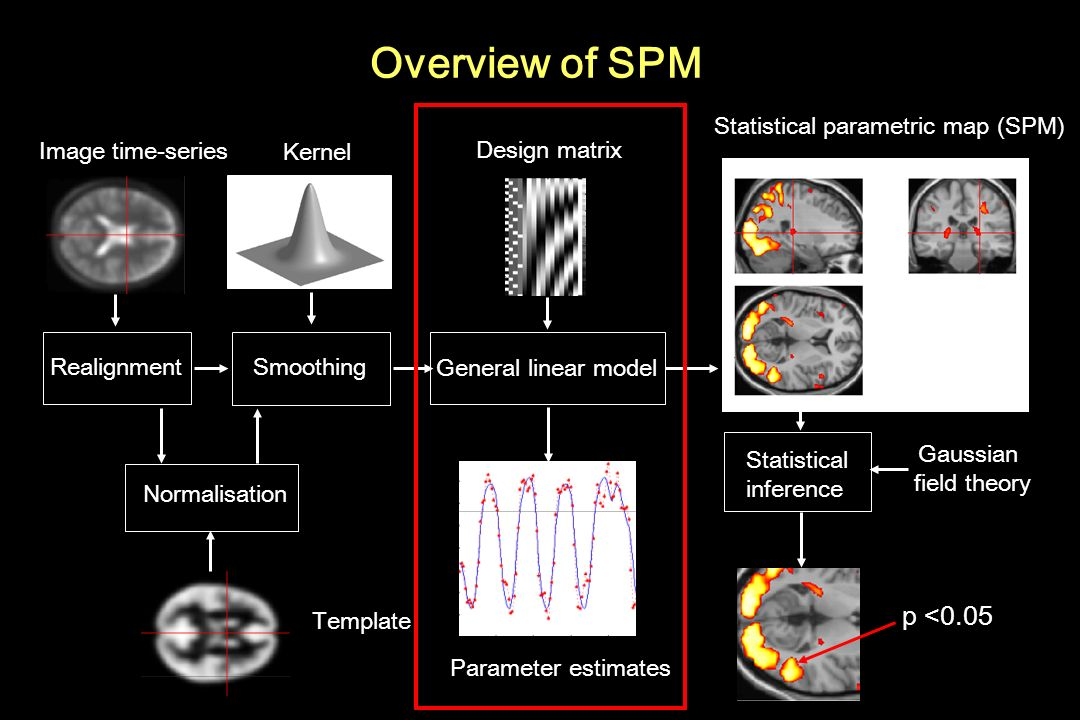 Overview of SPM p <0.05 Statistical parametric map (SPM)