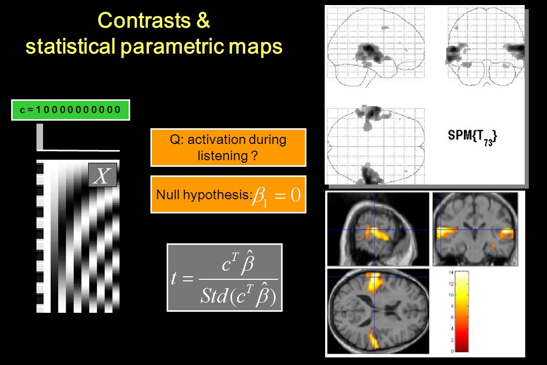 Contrasts & statistical parametric maps
