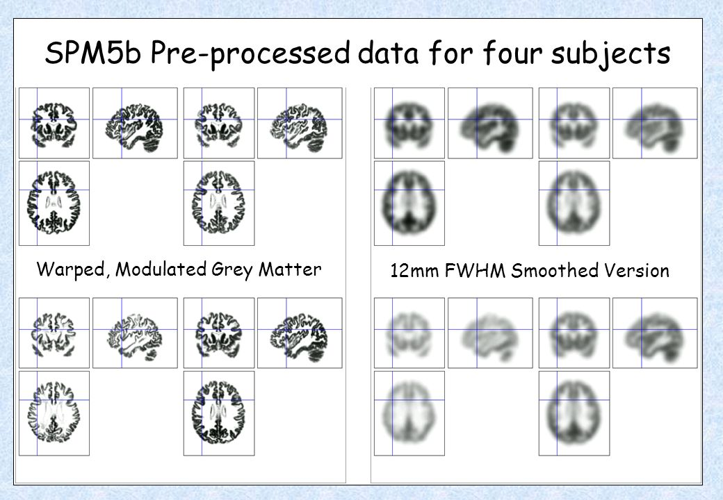 SPM5b Pre-processed data for four subjects