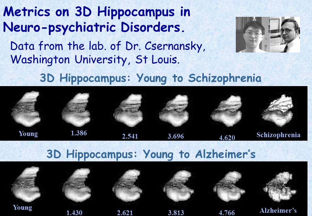 Metrics on 3D Hippocampus in Neuro-psychiatric Disorders.
