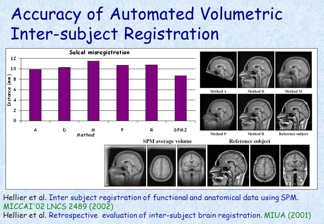 Accuracy of Automated Volumetric Inter-subject Registration