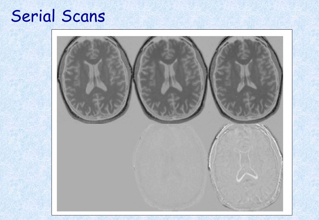 Serial Scans Early Late Difference